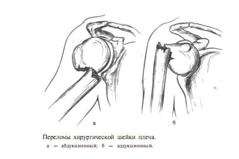 виды переломов шейки плеча