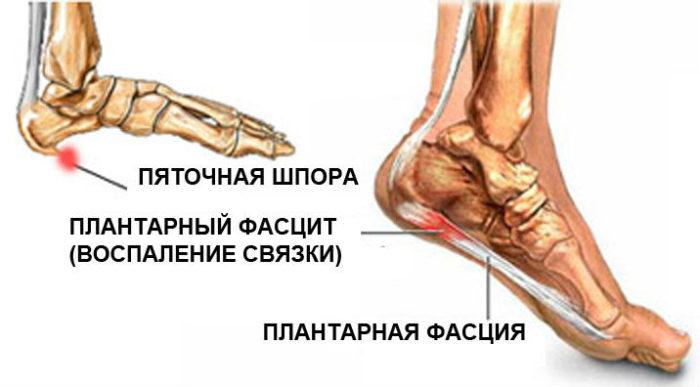 анатомия пятки