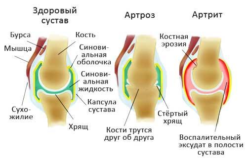 артроз и здоровый сустав
