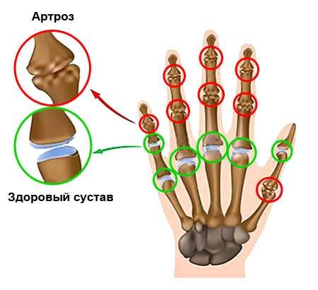 артроз суставов пальцев