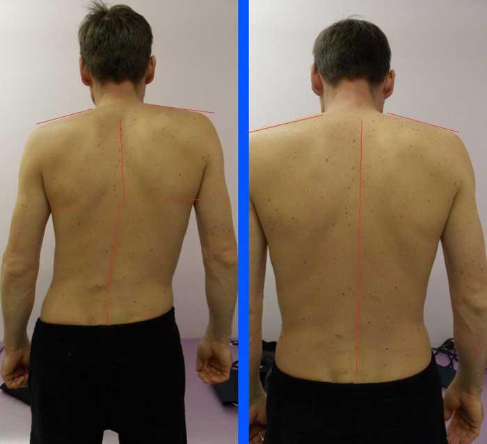 симметрия плеч