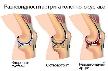 болезни колена