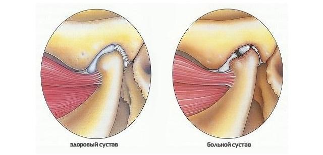 больной сустав челюсти