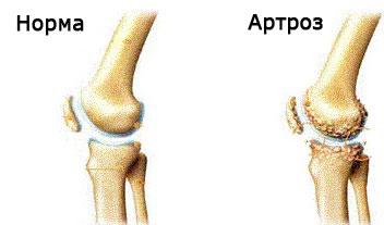больной сустав колена