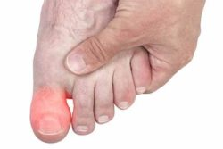 большой палец ноги