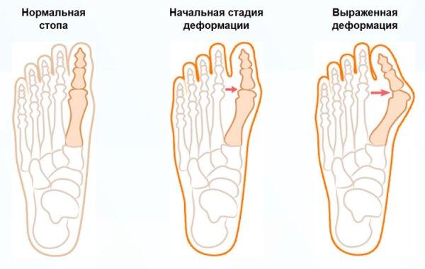 деформация пальцев стопы