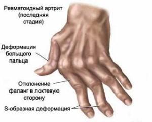 деформация пальцев