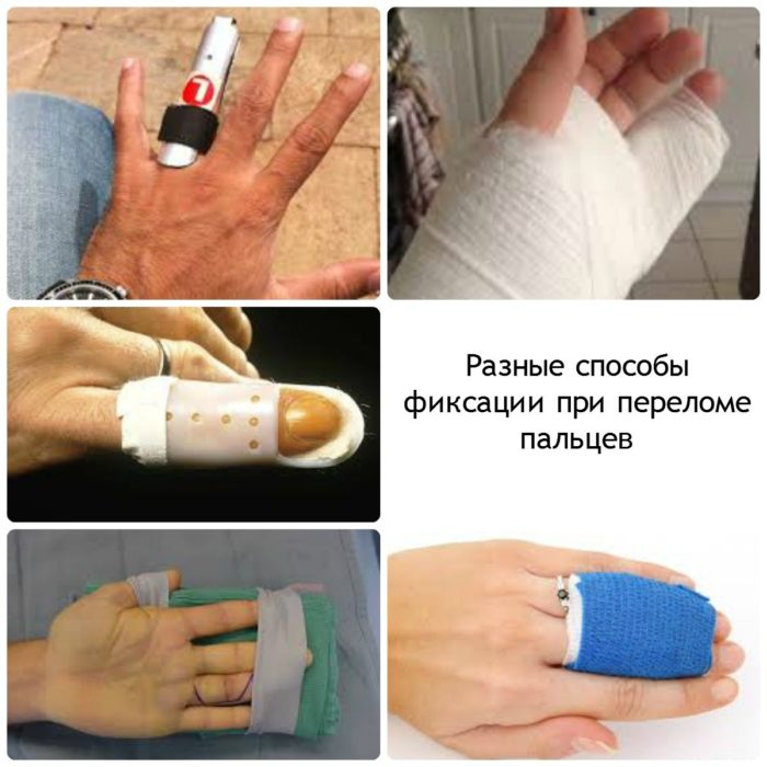 фиксация пальца при переломе