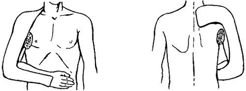 фиксация плеча
