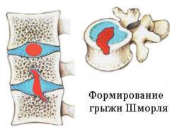 формирование грыжи Шморля