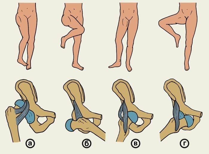 головка сустава бедра при поворотах ноги