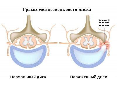 сравнение грыж диска позвоночника