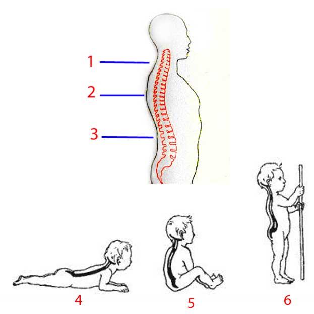 искривление спины у ребенка