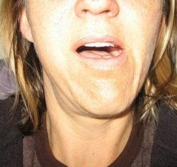 открытый рот при вывихе челюсти