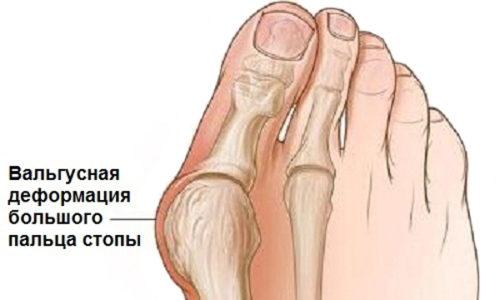 Почему воспаляются суставы пальцев ног