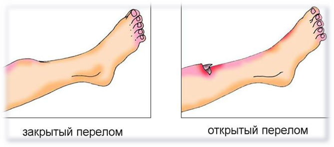 сравнение открытого и закрытого перелома