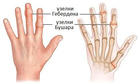 узелки Бушара на руках