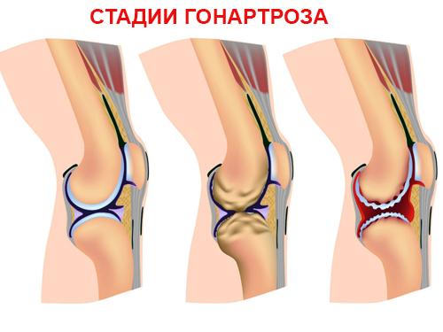 поражение коленного сустава