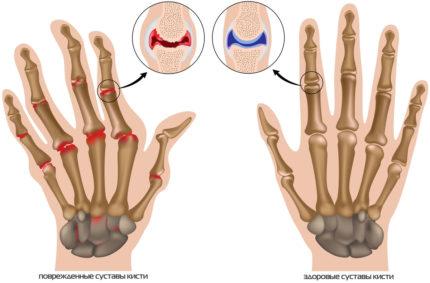 повреждены суставы рук