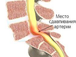 сдавливание артерии позвонками