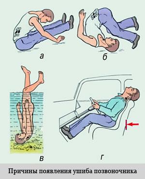 частые причины появления травм позвоночника