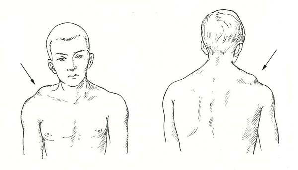 проявление вывихов на плече
