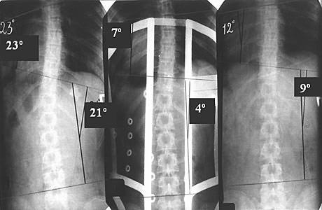 ренгенография спины