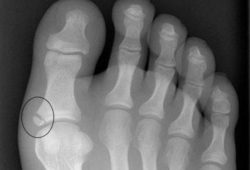 рентген лодыжки