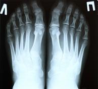 рентген ложыжек