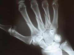 рентген запястья