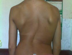 сильно кривая спина