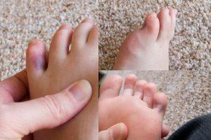синяк на пальце ноги