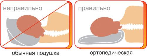 сравнение с обычной подушкой