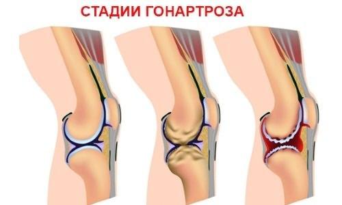 стадии разрушения сустава коленей
