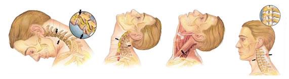 строение шеи