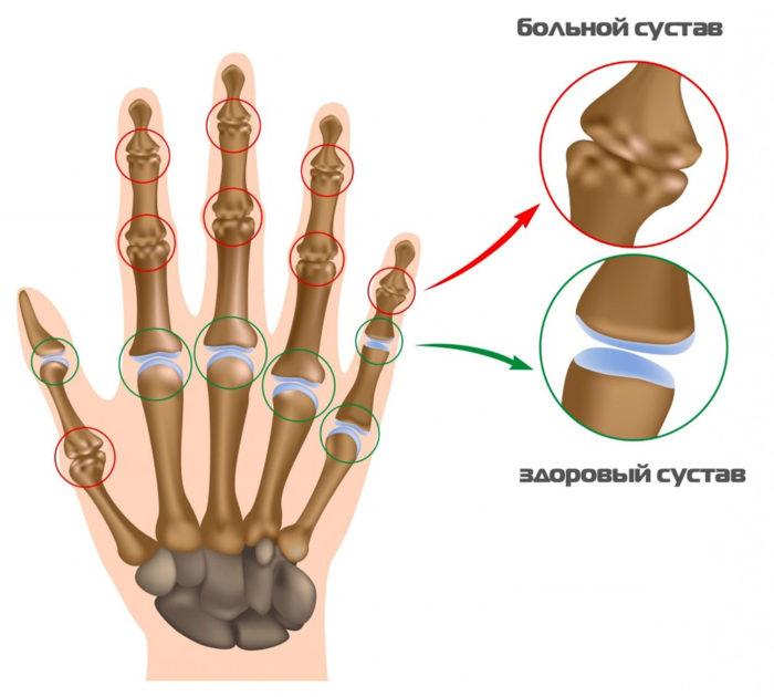 суставы пальцев рук