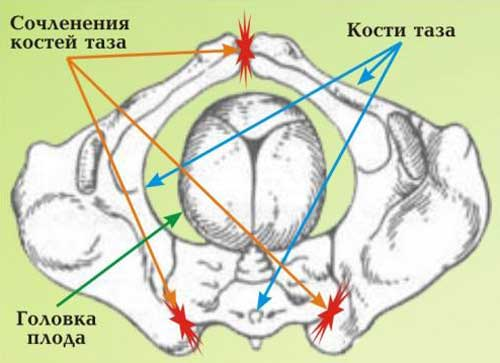 влияние ребенка на кости таза