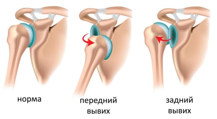 типы вывихов плечевого сустава