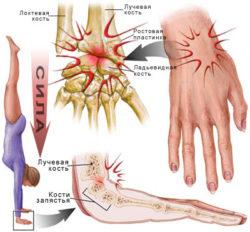 разновидности травм лучевой кости