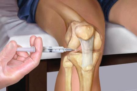 Инъекции при гонартрозе коленного сустава сообщение на тему-первая помощь пи растяжении связок суставов, перелом кости