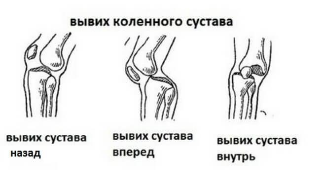 виды вывихов колена