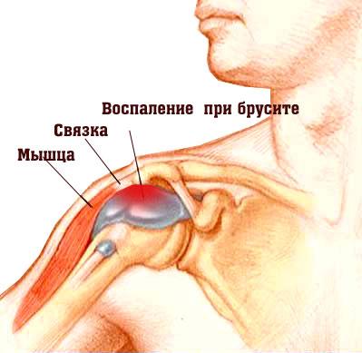 воспаление бурсы плеча