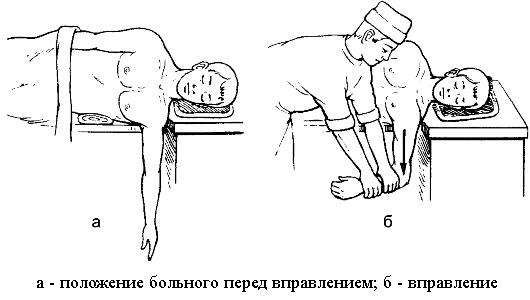 свешивание руки при вправлении плеча