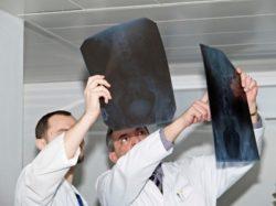 врачи смотрят снимок