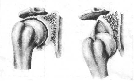 вывих костей плеча