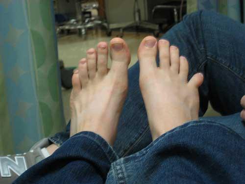 вывих мизинца на ноге