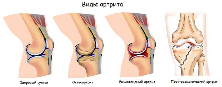артроз плечевых суставов симптомы и лечение