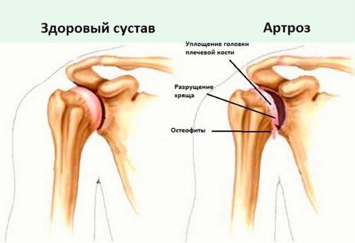 Народное средство от плечевого сустава
