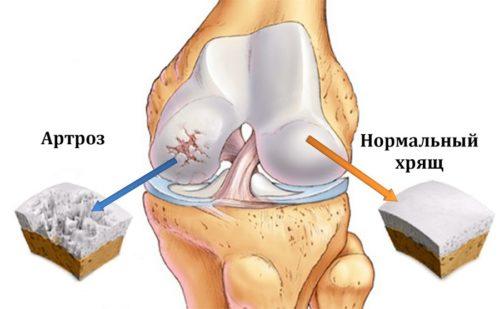 больной хрящ колена