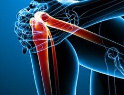 боль при сгибании колена